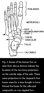 Figure 3. Bones of the human foot as seen from above.
