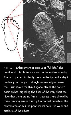 "Fig. 10 — Enlargement of digit II of ""full left."""