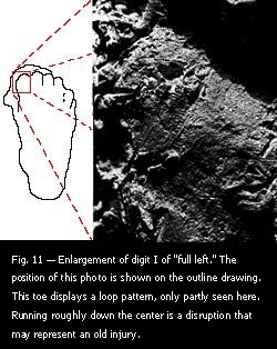 "Fig. 11 — Enlargement of digit I of ""full left."""
